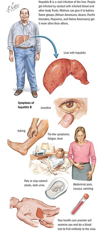 An illustration of the symptoms of Hepatitis C