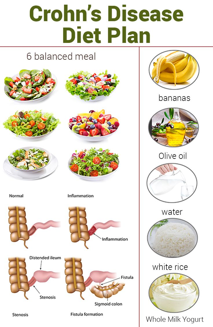 A picture of a Crohn's Disease Diet Plan