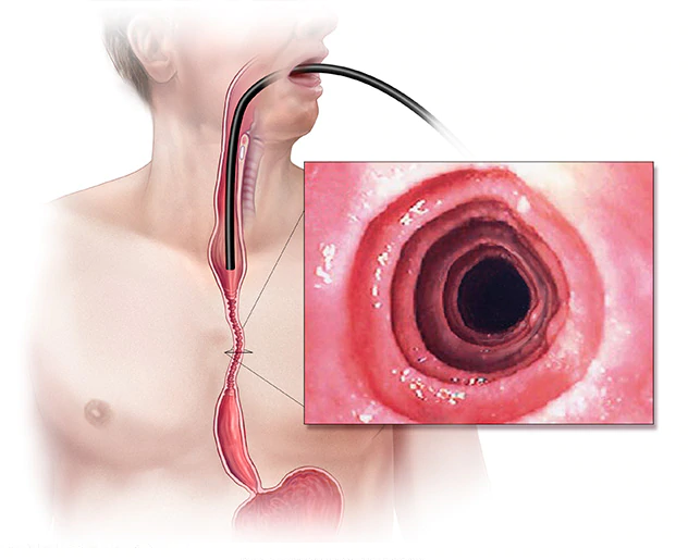 A picture of Barrett's esophagus