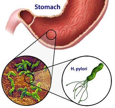 A magnified illustration of Helicobacter pylori
