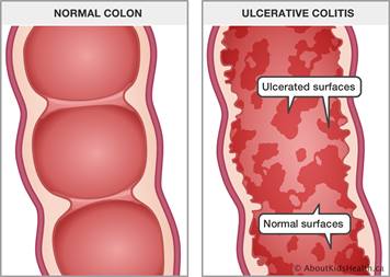An illustration of a normal colon and a ulcerative colitis