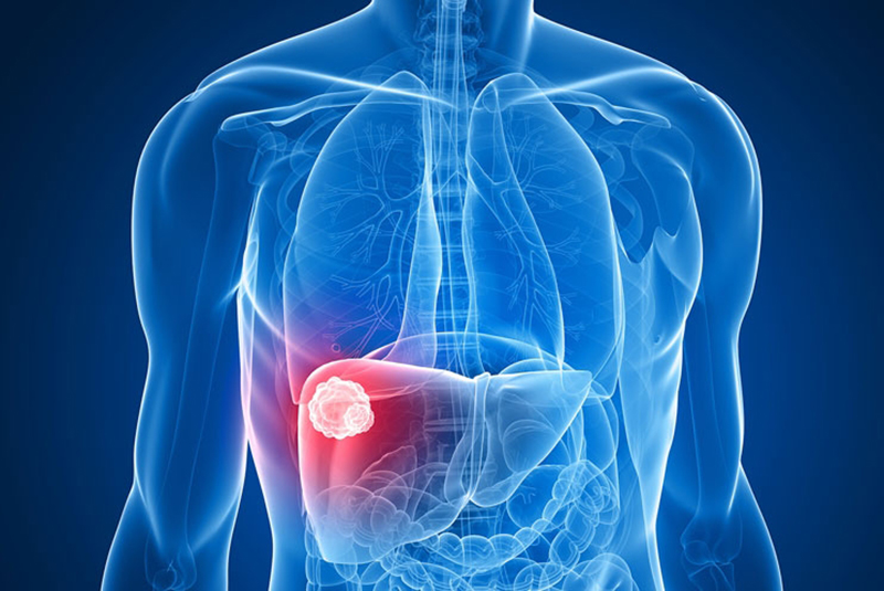 An illustration of a liver tumor