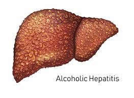 An illustration of an alcoholic hepatitis