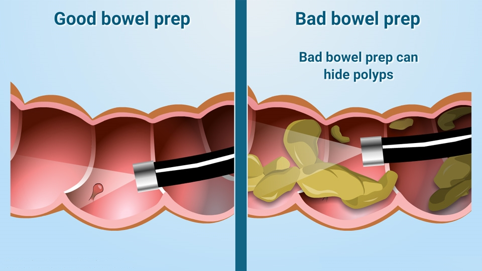 An illustration of a good and bad bowel prep