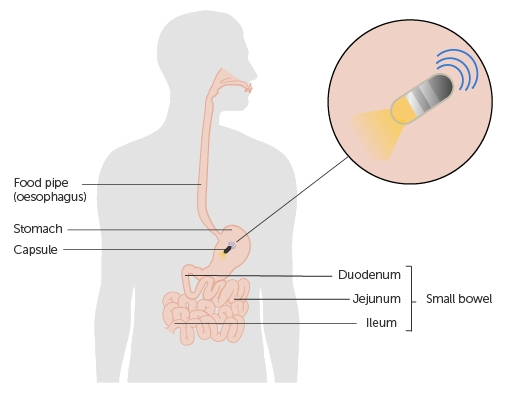 An illustration of where the capsule camera will sit after a patient swallow it
