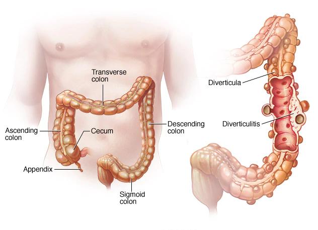 An illustration of a human colon anatomy