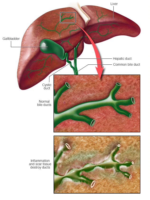 An illustration of normal bile ducts and inflamed bile ducts