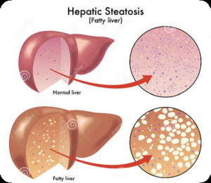 An illustration of a normal liver and fatty liver