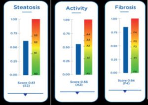 Picture of Steatosis, Activity and Fibrosis chart
