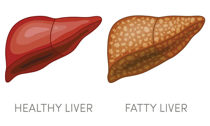 An illustration of a healthy liver and fatty liver