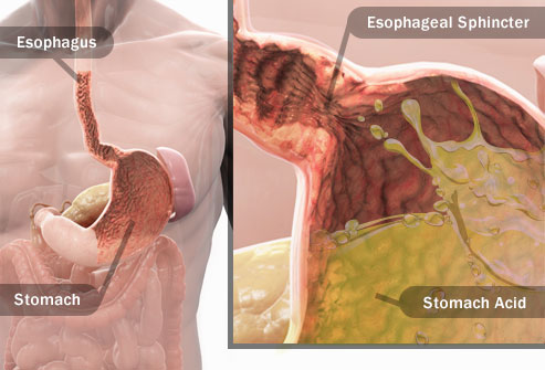 An illustration of a human stomach anatomy filled with stomach acid