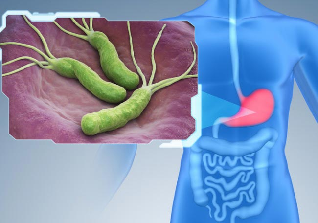 An illustration of a magnified helicobacter pylori