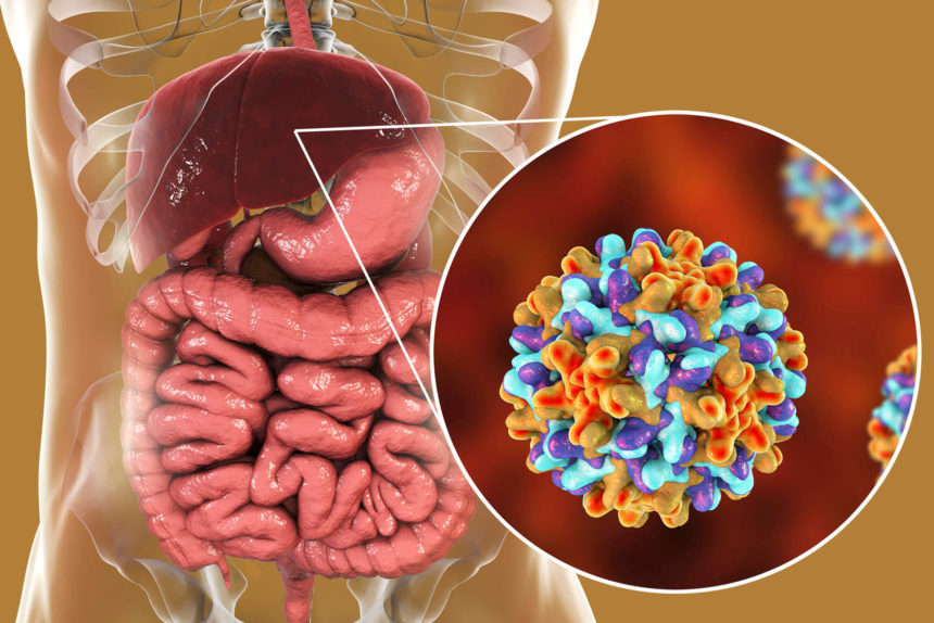 An illustration Hepatitis C in a human stomach