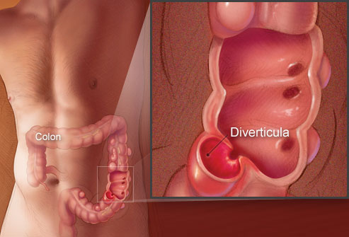 An illustration showing how Diverticula look like in the colon