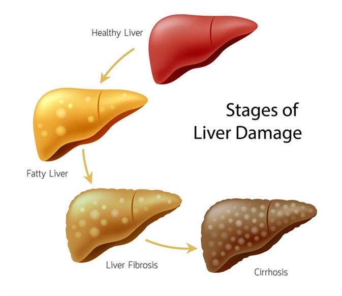 An illustration of the stages of liver damages
