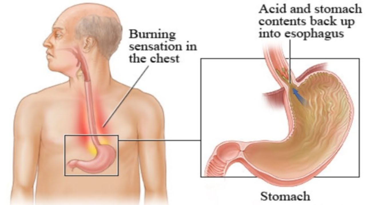 An illustration of a human stomach anatomy