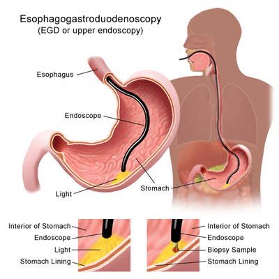 esophagogastroduodenoscopy illustration