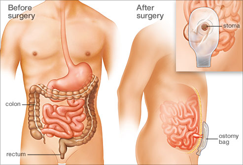 An illustration of before the UC surgery and after the UC surgery