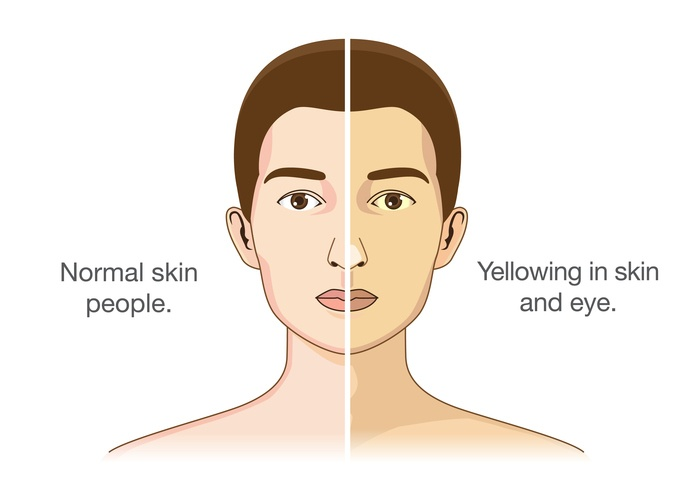 An illustration of normal skin and yellowing in skin and eye