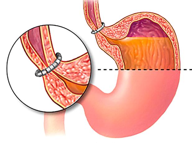 An illustration of GERD treatment