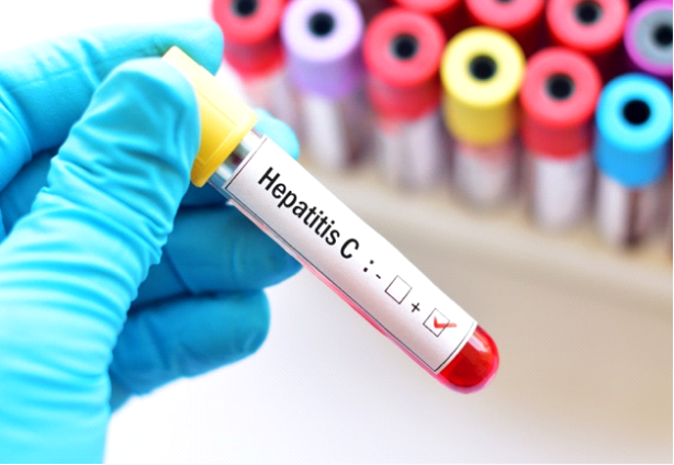 Picture of a lab tech holding on to Hepatitis C sample test
