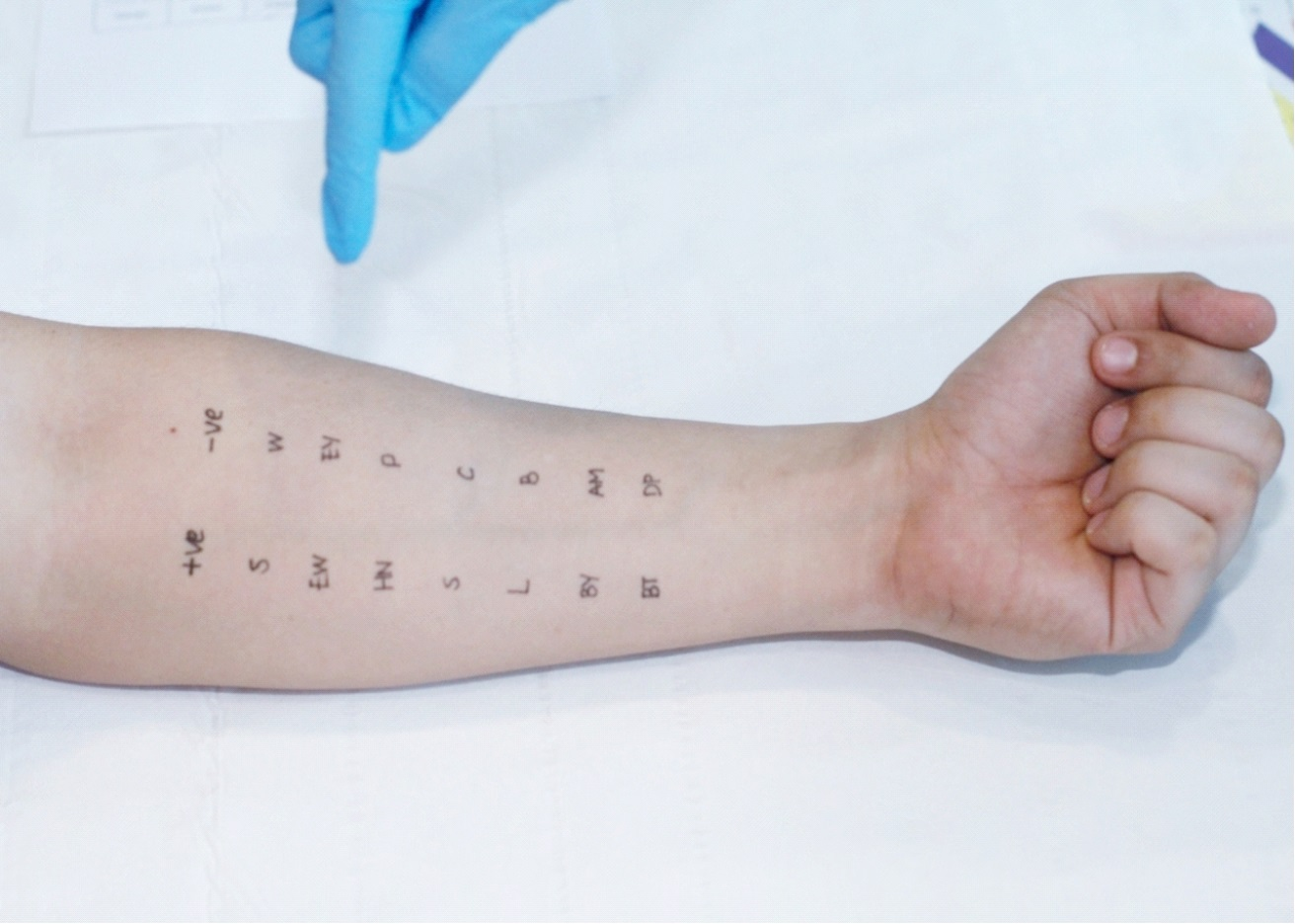 Picture of suspected allergen written on patient's arm for skin prick test