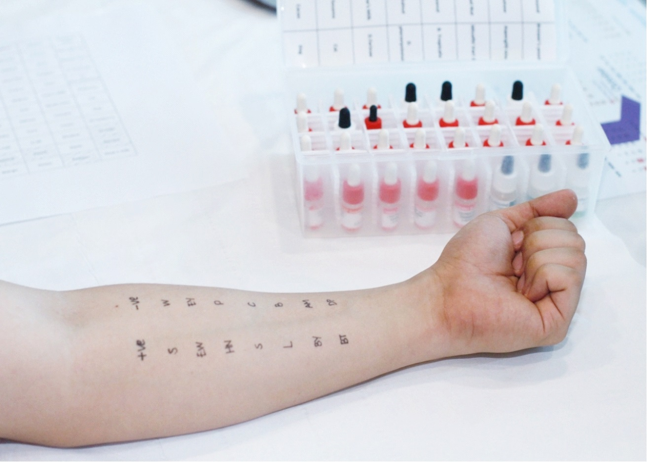 Picture of patient's arm resting beside bottles of allergen waiting for skin prick test
