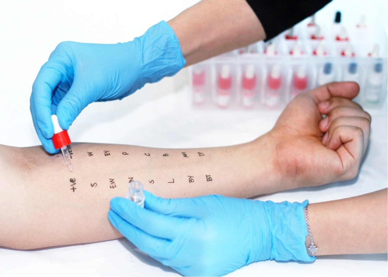 Picture of a doctor dropping an allergen on patient's arm